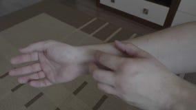 抓他的手的少年男性影响从小红色rashï ¿ ½或过敏- 影视素材