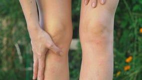 抓软的痒的红色爆沸在从蚊咬的皮肤在腿用手 4k,特写镜头,慢动作射击 影视素材