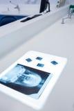 投入在桌的一块人的头骨的X-射线 免版税库存照片