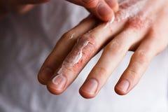 投入在他的手有非常干性皮肤的和深镇压上的一个年轻人的播种的图象润肤霜与奶油色emmolient 库存图片