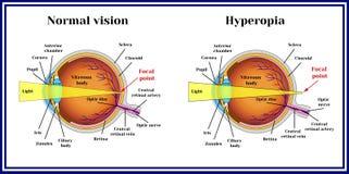 折射错误眼珠 远视 医学 向量例证