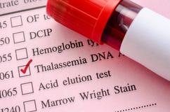 抽样在血液管的血液地中海贫血脱氧核糖核酸测试的 免版税库存图片