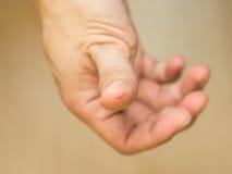 拇指裁减创伤 免版税库存图片