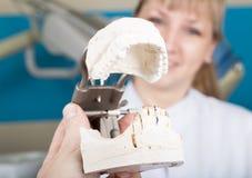 招待会女性牙医的牙医的拿着牙齿塑象 免版税库存照片