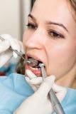 招待会是在医生审查在蛀牙的口腔的女性牙医 龋保护 蛀牙 免版税库存图片