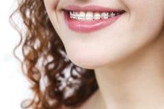 括号的女孩 愉快的微笑关闭  免版税库存照片