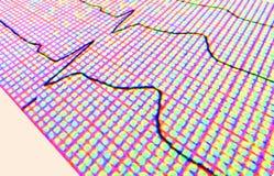拼贴画ecg重点measurment费率 免版税库存照片