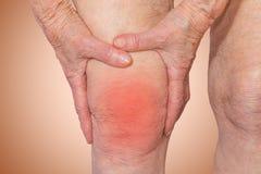 拿着充满痛苦的资深妇女膝盖 免版税库存照片