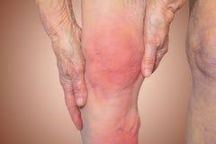 拿着充满痛苦的资深妇女膝盖 免版税库存图片