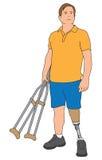 拿着拐杖的被截肢者 向量例证