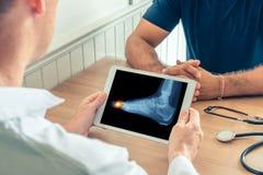 拿着有患者的脚X-射线的医生一种数字片剂  在脚趾的痛苦 免版税库存图片