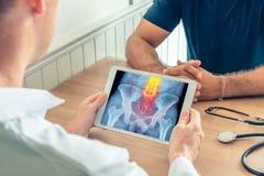 拿着有患者的臀部X-射线的医生一种数字片剂  在脊椎的痛苦 库存图片