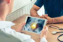 拿着有病人的臀部X-射线的医生一种数字片剂有痛苦的在脊椎 库存图片