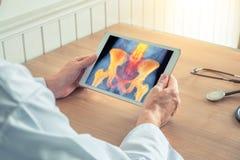 拿着有臀部X-射线的医生一种数字片剂  在脊椎和臀部的痛苦 库存图片