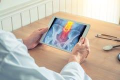 拿着有臀部X-射线的医生一种数字片剂  在脊椎的痛苦 免版税图库摄影