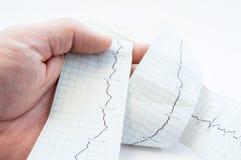拿着有记录的心电图的EKG, ECG波浪的普通开业医生、心脏科医师或者医务人员手中磁带 诊断p 免版税库存照片