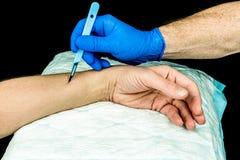 拿着解剖刀的手切开在胳膊 免版税库存照片