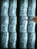 指向脊椎的腰部mri 免版税库存照片