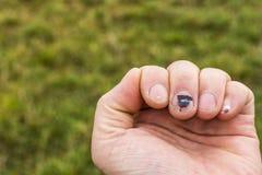 指甲下的血肿 图库摄影