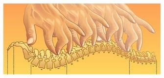 按摩脊柱治疗者 向量例证