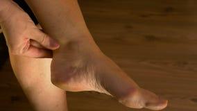 按摩脚腕和舒展脚的妇女特写镜头遭受痛苦 影视素材