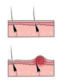 挖洞头发的传染媒介 库存照片