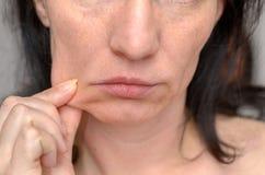 捏她的面颊的皮肤妇女 免版税库存图片