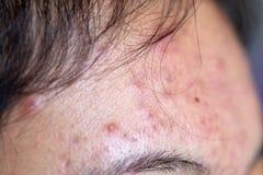 损害剥皮导致由在面孔的粉刺在诊所 免版税图库摄影