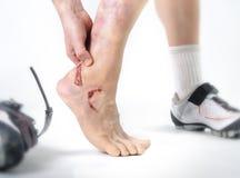 握受伤的脚腕的年轻人的手和脚在自行车骑马崩溃事故伤害出血以后 库存照片