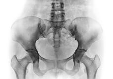 摄制正常人的骨盆和上弦与斜端杆结点X-射线  免版税图库摄影