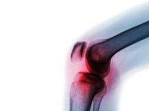 摄制X-射线与关节炎& x28的膝盖关节;痛风、风湿性关节炎、腐败的关节炎、骨关节炎膝盖& x29; 库存图片