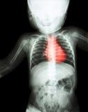 摄制X-射线神童's身体以心脏病(风湿性心脏病,活门心脏病) (心血管系统) 免版税库存图片