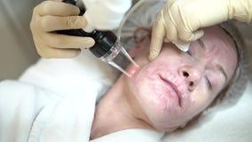 擦亮在化妆诊所的激光面孔 影视素材