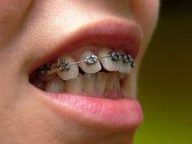 支撑牙齿 免版税图库摄影