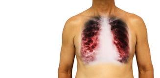 支气管扩张 与X-射线胸口展示多杯肺水的人的胸口和囊肿由于慢性传染 被隔绝的背景 B 免版税库存图片