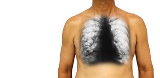 支气管扩张 与X-射线胸口展示多杯肺水的人的胸口和囊肿由于慢性传染 被隔绝的背景 B 免版税图库摄影