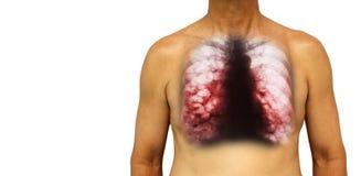支气管扩张 与X-射线胸口展示多杯肺水的人的胸口和囊肿由于慢性传染 被隔绝的背景 B 图库摄影