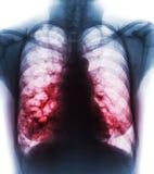 支气管扩张 X-射线胸口展示多杯肺水和囊肿由于慢性传染 正面图 免版税库存照片