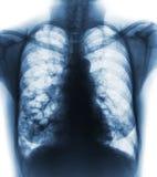 支气管扩张 X-射线胸口展示多杯肺水和囊肿由于慢性传染 正面图 免版税图库摄影