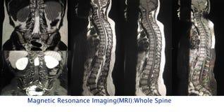 整个脊椎的磁反应想象 图库摄影