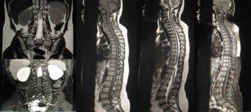 整个脊椎的磁反应想象 免版税库存照片