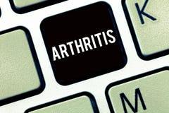 文本标志陈列关节炎 导致联接的痛苦的炎症和僵硬的概念性照片疾病 免版税图库摄影
