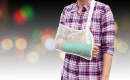 断胳膊,妇女从与绿色塑象的事故伤的肱骨 免版税库存照片