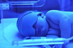 新出生的黄疸 库存照片