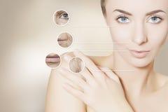 更新妇女皮肤画象有图表圈子的刺的 免版税库存照片