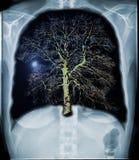 新鲜的肺 免版税库存图片