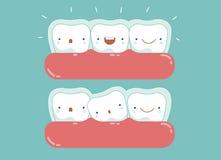 无形括号,牙齿和牙 免版税库存图片