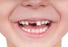 无牙的微笑 库存照片