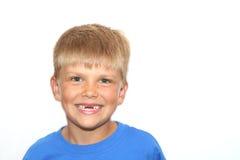 无牙的微笑 免版税库存照片