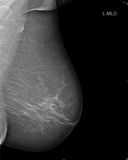 早期胸部肿瘤Ⅹ射线测定法 免版税库存照片